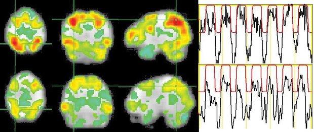 """Radoša un parasta cilvēka smadzeņu darbība risinot uzdevumu un """"atpūšoties"""""""