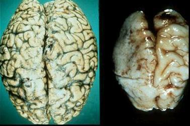 """""""Mēreni dzeroša"""" alkoholiķa un hroniska alkoholiķa smadzenes"""
